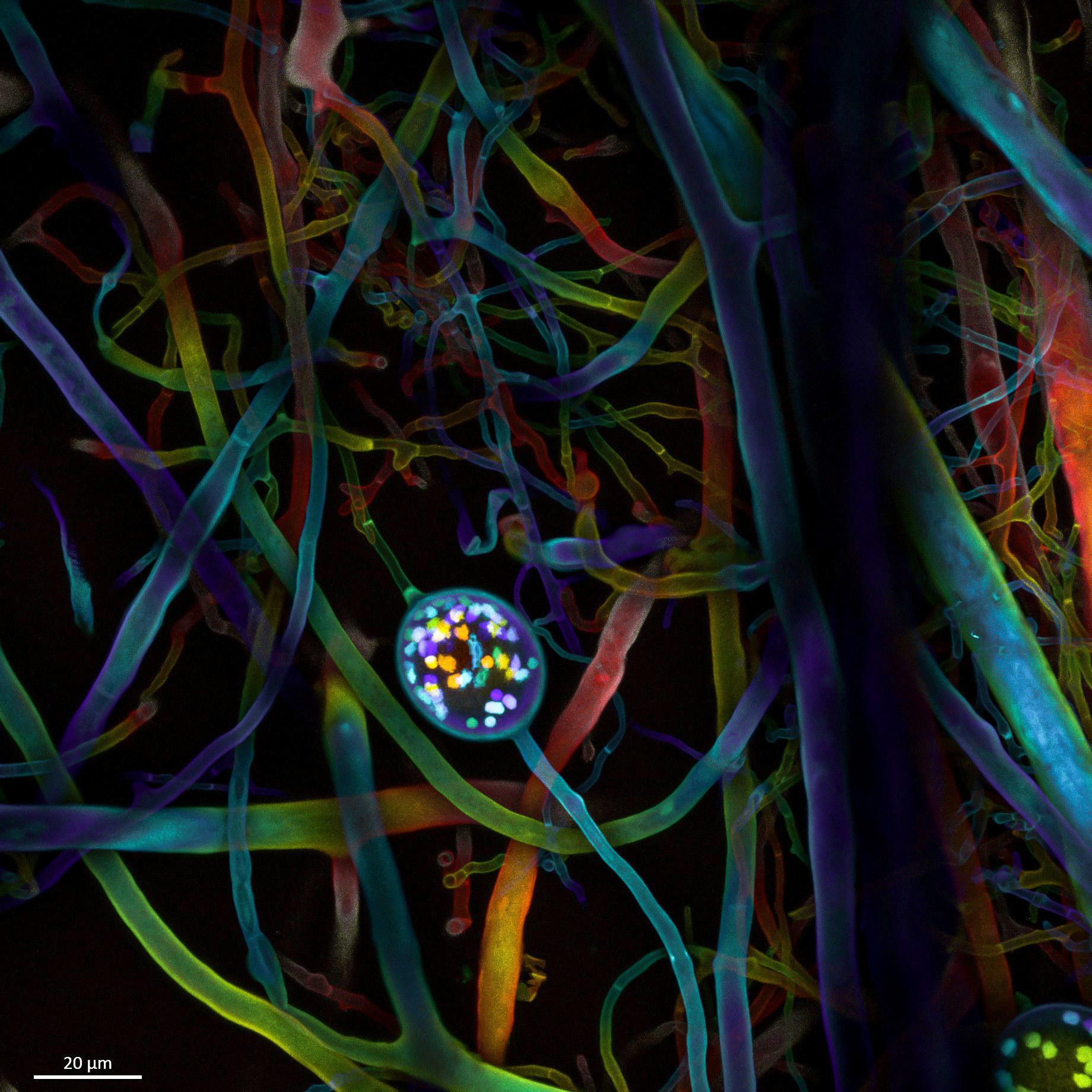[Image: No4-SL1-spore-10_01_63x_191126-Color-cod...ion-31.jpg]